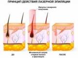Де зробити лазерну епіляцію в Москві: адреси, відгуки